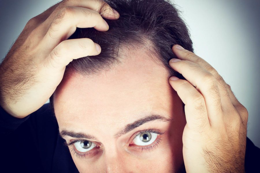 Reasons to Get a Hair Loss Treatment Today